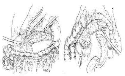 Pancreatic Necrosectomy Pederzoli Bassi Verona