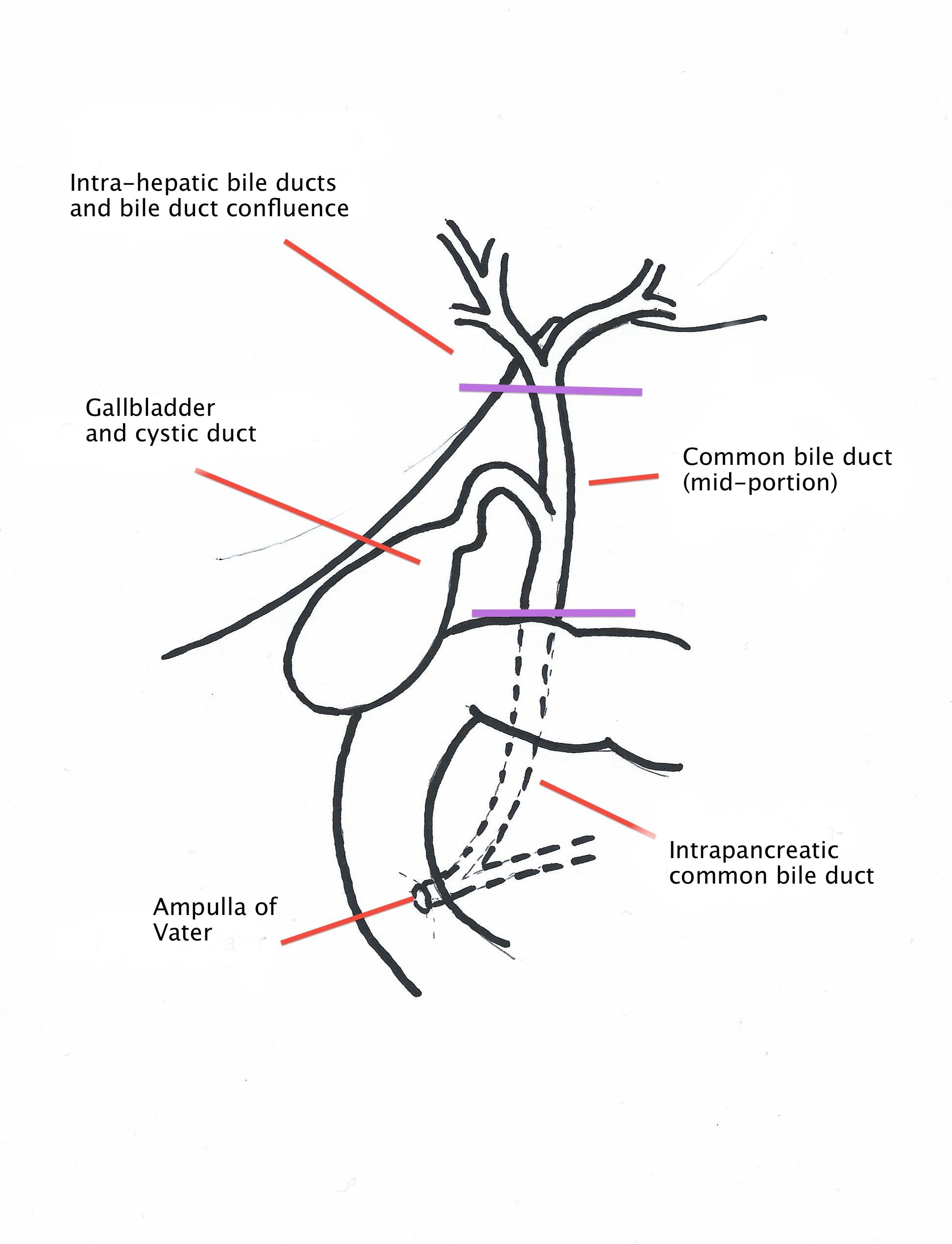 Chirurgia Del Pancreas Verona Bile Duct Adenocarcinoma Overview